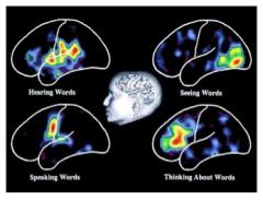 Zones du cerveau s'activant lors de différentes tâches